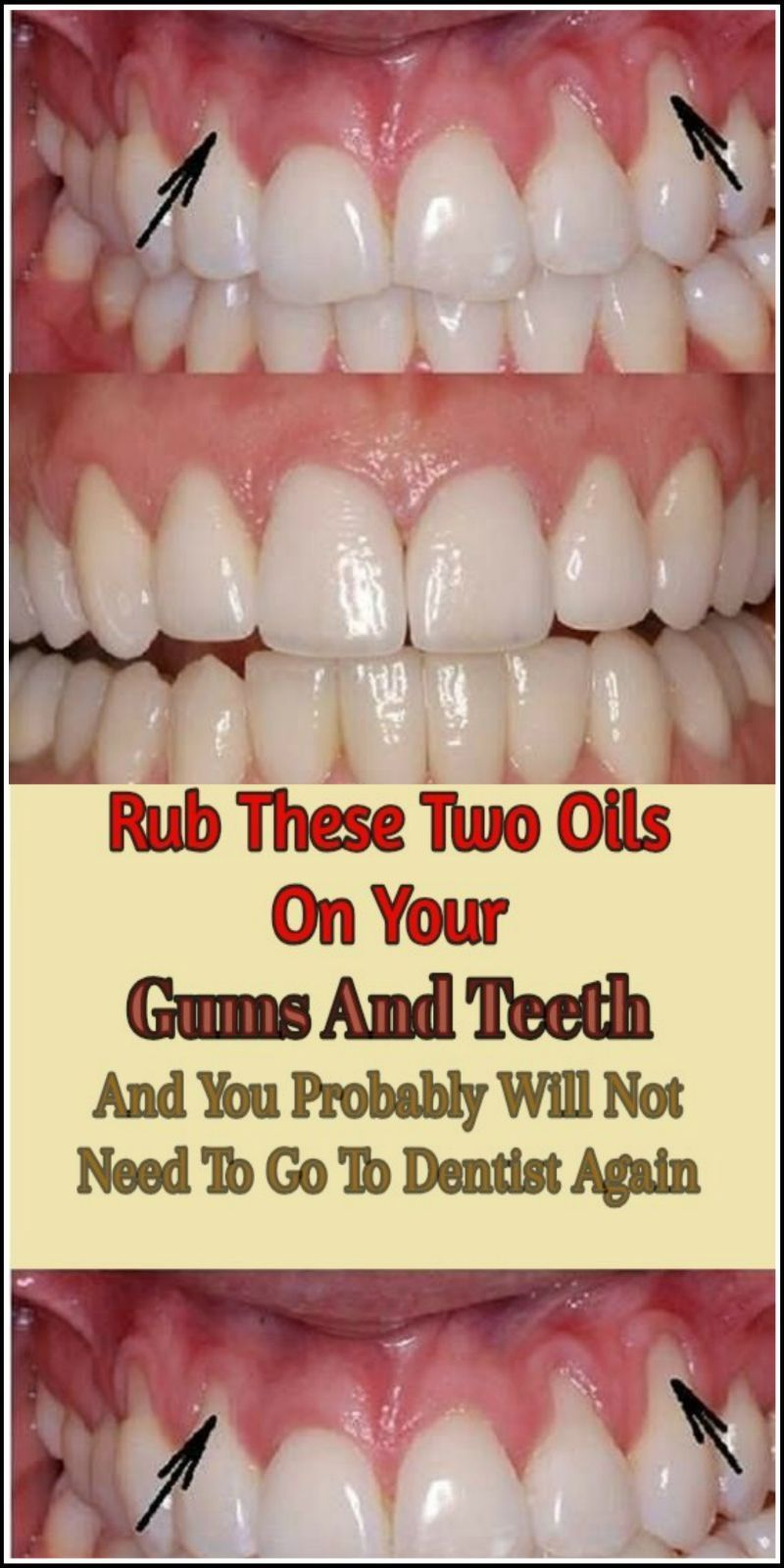 Rub These Two Oils On Your Gums And Teeth fitness60634