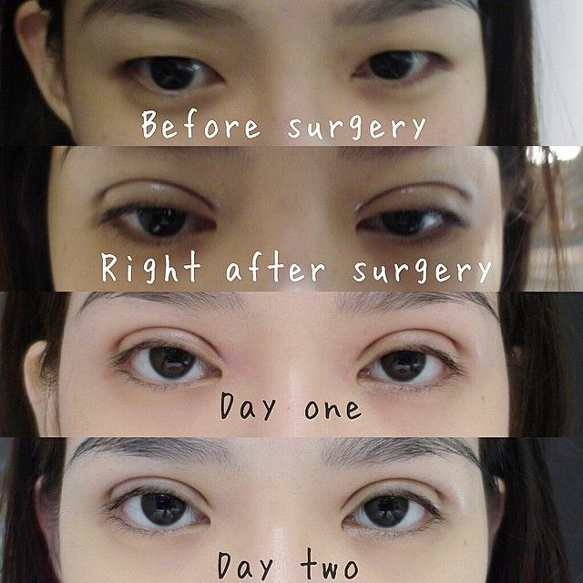 L I A N M E I T I N G : My double eyelid surgery experience