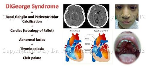 Digeorge Syndrome Thymic Applasiapresents With Tetany In The