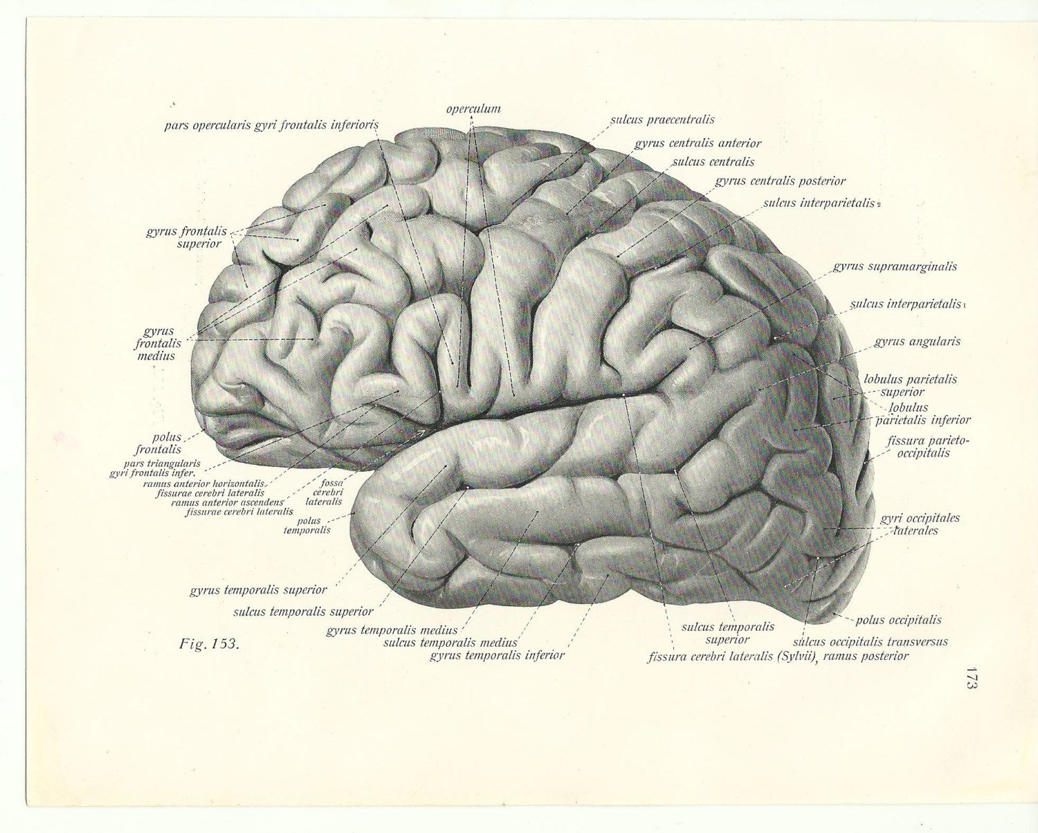 brain structures drawing - Google Search | Of clinical interest ...