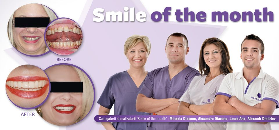 #Smile of the month - january 2014! #dentist #dental treatment