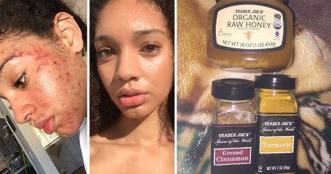 Model Clears Up Severe Acne In A Week With This Natural Skincare Routine Acne Clears In 2020 Acne Skincare Routine Natural Skin Care Routine Acne Skin