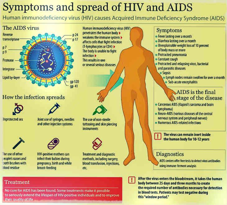 symptom of hiv: several symptoms that you need to notice, Skeleton