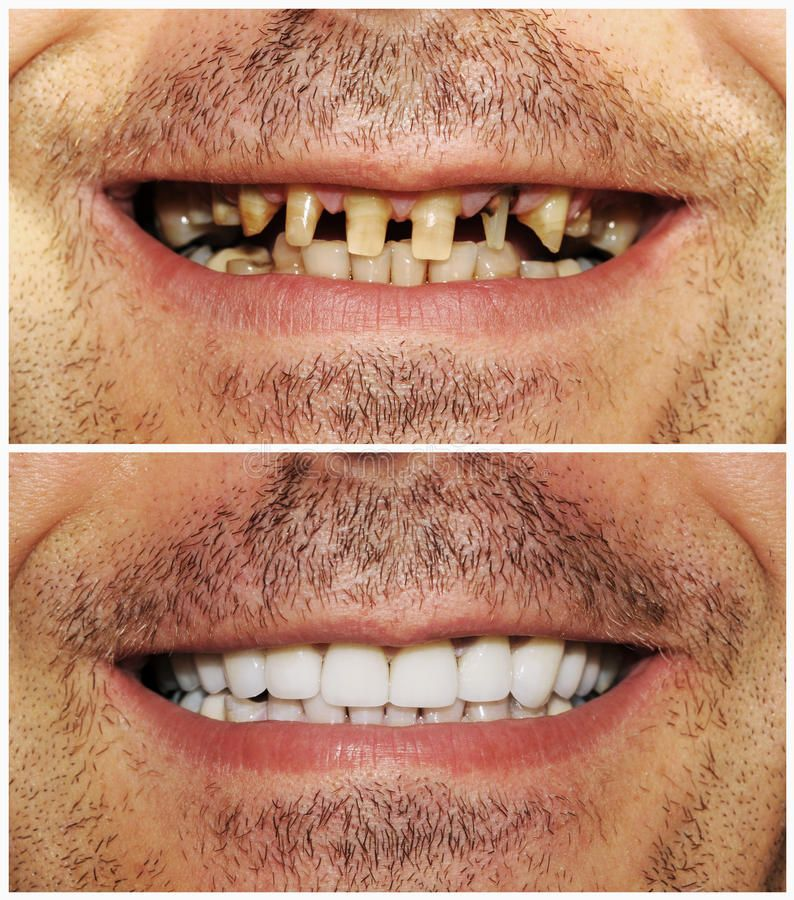 Before and after stock image. Image of patient, st