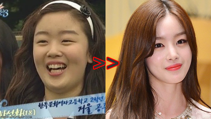 10 Shocking Korean Idol Plastic Surgery Transformations Kpopmap Kpop Plastic Surgery Plastic Surgery Celebrity Surgery