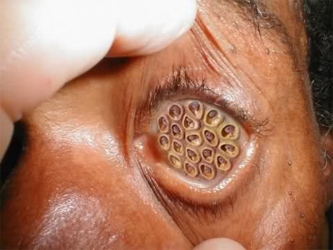 Lotus Seed Pod Eye Creeps Me Out Here It Is To Creep You Out Too
