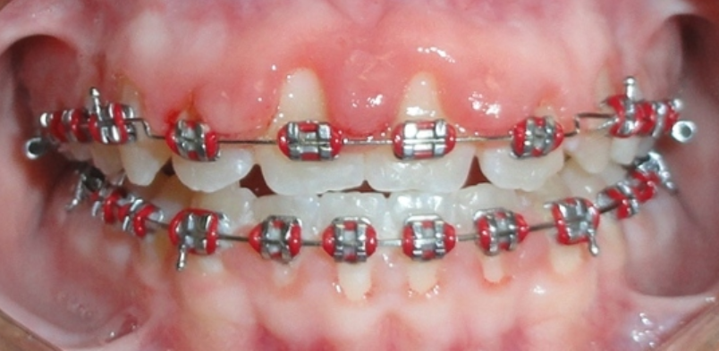 HOW TO BRUSH AND FLOSS WITH BRACES Dental braces