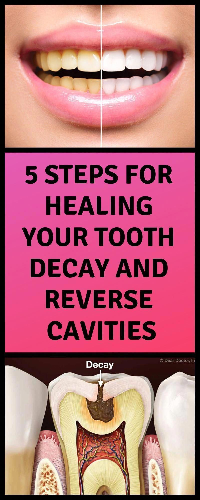 Symptomatic Tooth Decay Healthy Teeth toothbrushes