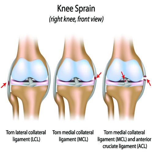 Left Knee Sprain Diagram House Wiring Diagram Symbols