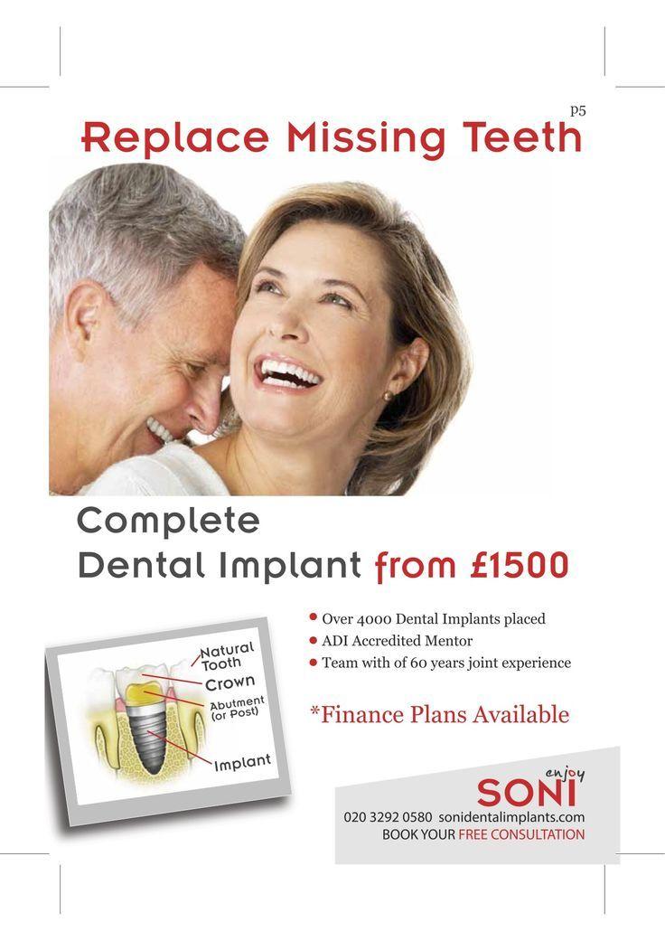 soni dental implants Google Search Dental implants