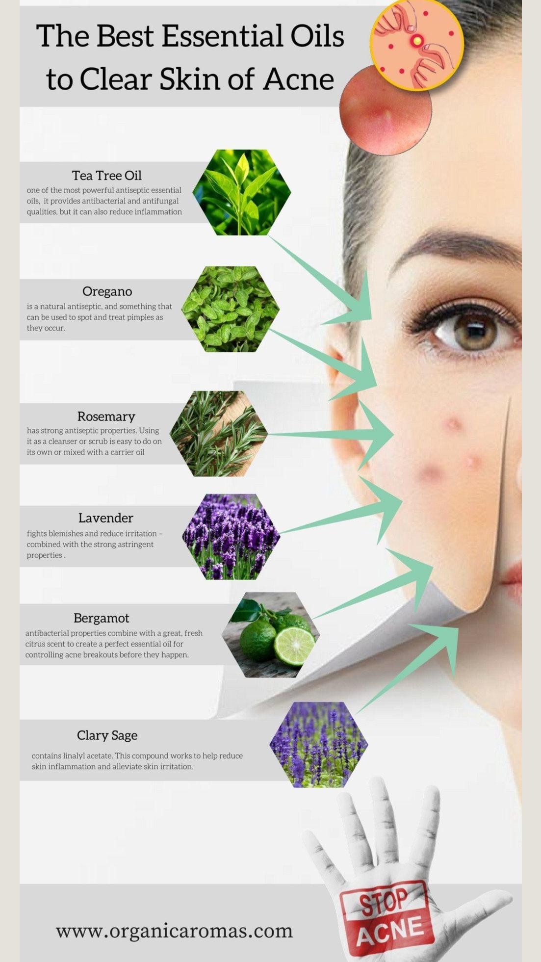 Articole despre: tratamentul-varicelor