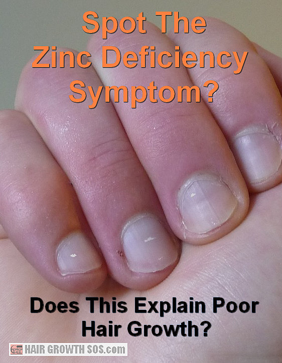 zinc deficiency hair
