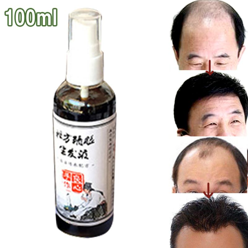 Cheap hair massager, Buy Quality massager body directly