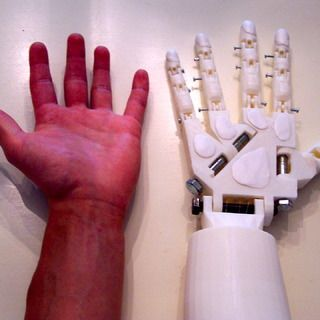 Diy Prosthetic Hand Forearm Voice Controlled Voice Control Prosthetics The Voice