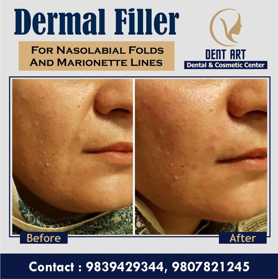 As we age, our face loose some amount of subcutaneous fat