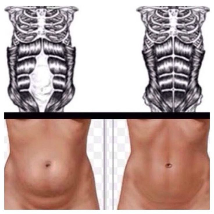 The Complete Guide to Getting Rid of Diastasis Recti - #Complete #Diastasis #fitness #Guide #Recti #...