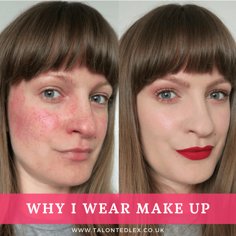 Rosacea FAQs Everything You Ever Wanted To Know But Were