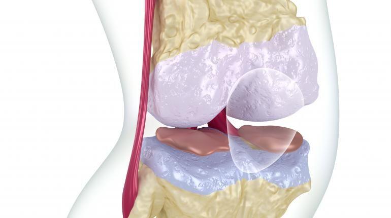 Knee arthroscopic surgery often unnecessary placebo study