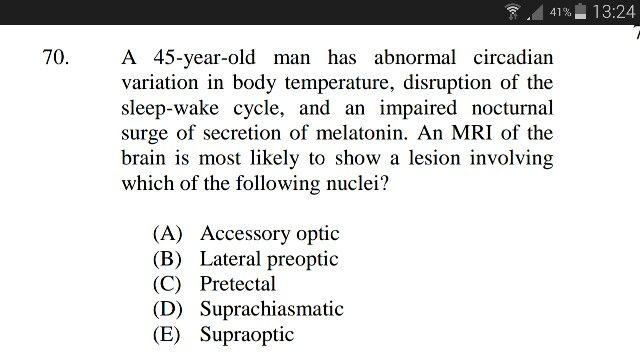 Sample test question 70: D
