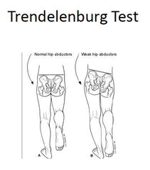 Physical Therapy Special Tests Trendelenburg Test Checks