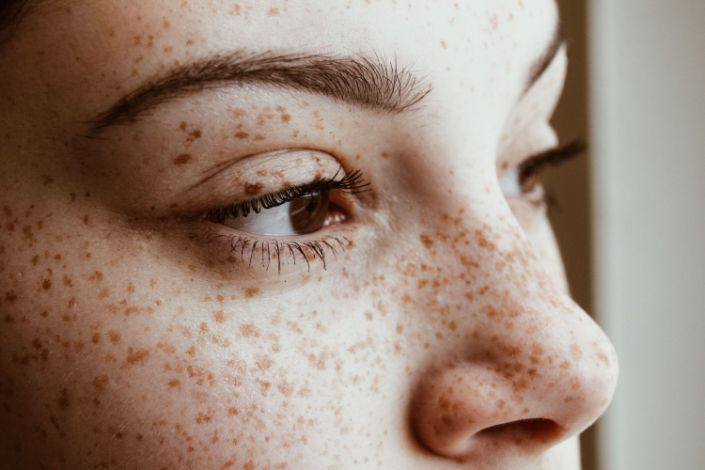 How to Get Rid of Milia on Your Face — and Prevent Them in