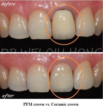 Does Ceramic Crown Look As Unnatural As Pfm Crown Tooth Crown Porcelain Crowns Ceramics