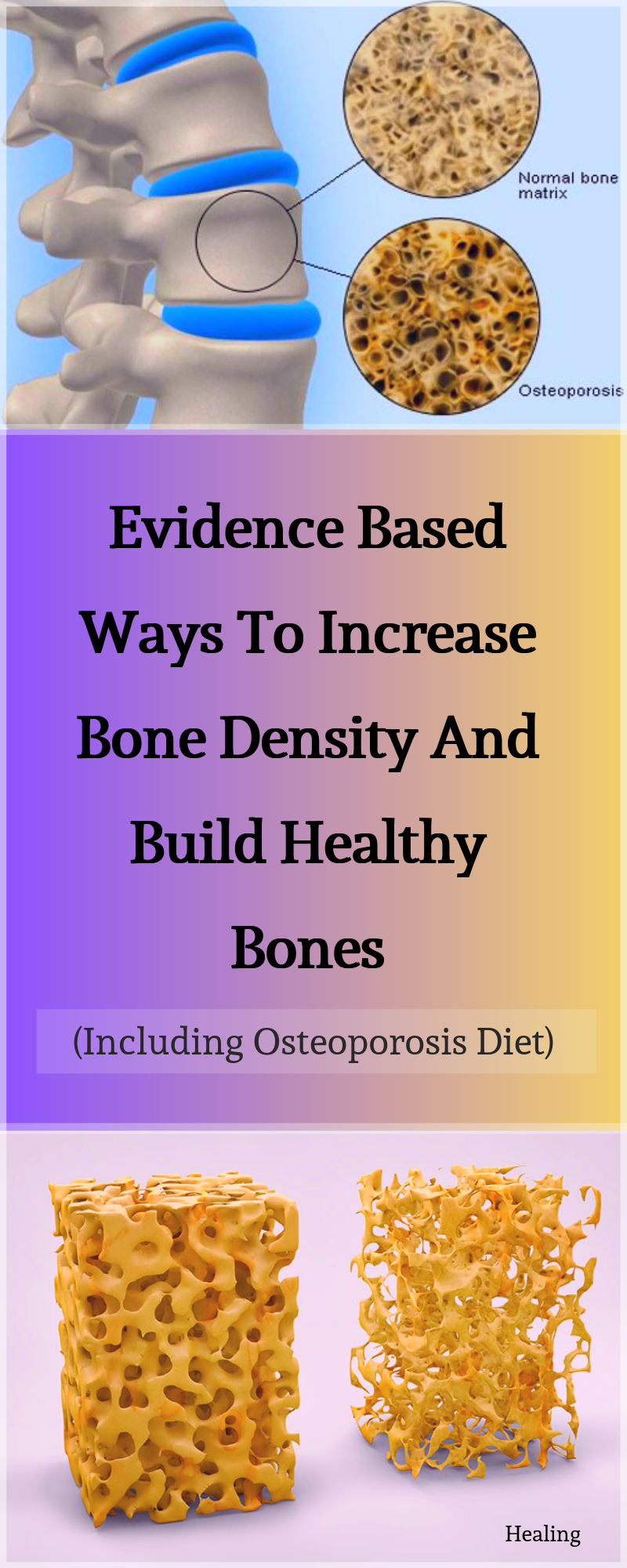 27++ How to build bone density with osteoporosis viral