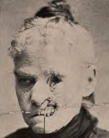Dead tissue (sloughing) from syphilis. Poor woman. I wonder how bad it hurt, or if the nerve cells died too.