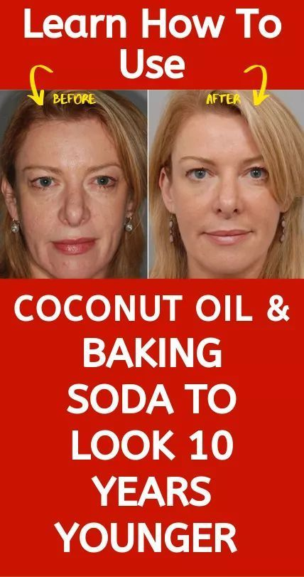 Learn how to use coconut oil and baking soda to look 10 years younger than usual This remedy is very powerful and you will be shocked by the results Women all over the wo...