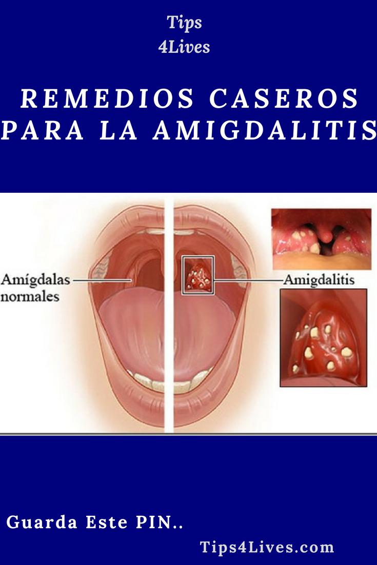 remedios caseros para la inflamacion de las amigdalas en niños