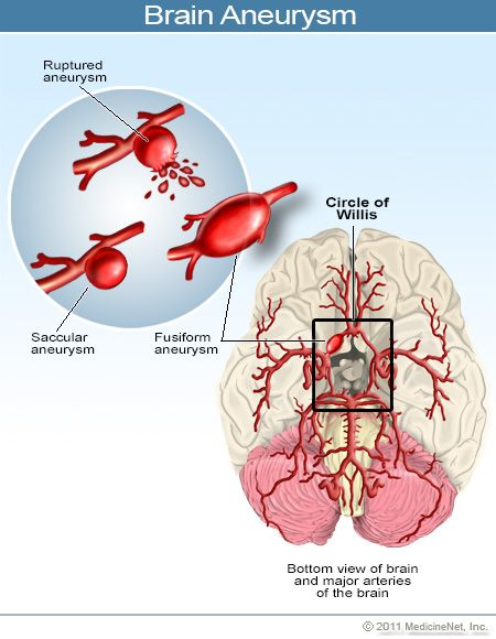 Brain Aneurysm Early Signs Symptoms Causes Survival Rate