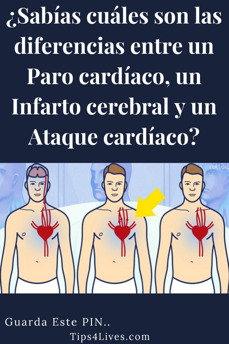 diferencia entre paro cardiaco o infarto