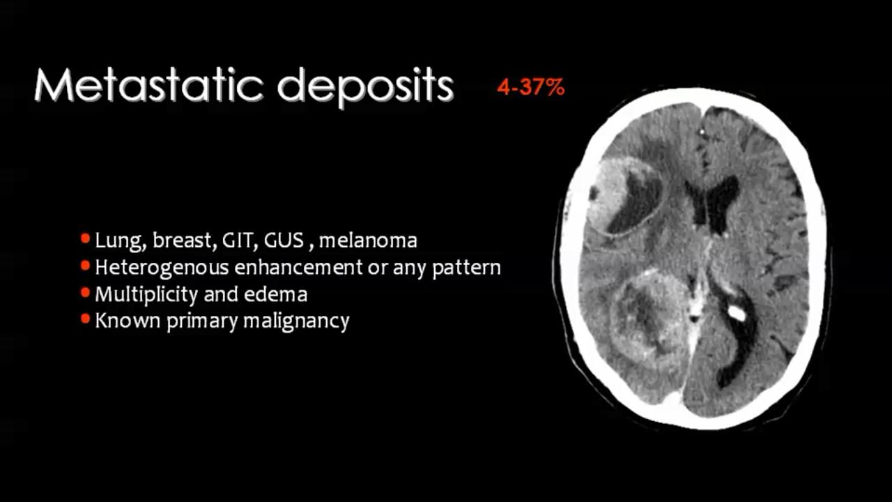 Brain tumours imaging