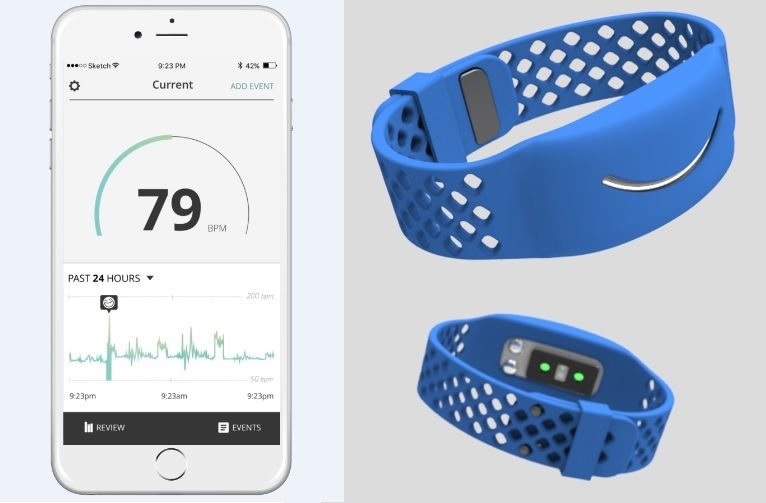 Wearable Device May Be Able To Predict >> Wearable For Kids With Autism May Help Predict Avoid Meltdowns