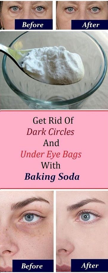 Remove Your Dark Circles And Under Eye Bags With Baking Soda in Just a Week  #wieghtloss  #fitness