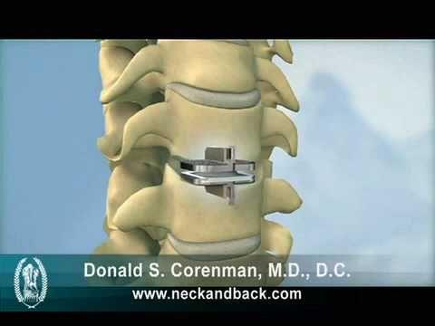 Prodisc C Cervical Artificial Disc Replacement Acdf