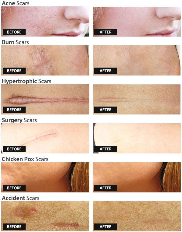 If You Want To Prevent Or Reduce Scarring Without Steroids Or Laser