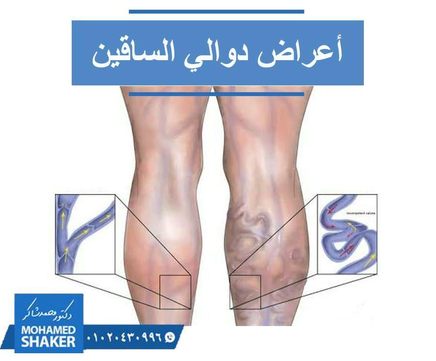 هل تقتصر أعراض دوالي الساقين على انتفاخ الوريد وظهوره باللون الأزرق لا حيث يمكن أن يصاحب هذا الانتفاخ الشعور بثقل في الساق خاصة بعد ممارسة التمارين الريا Doctor