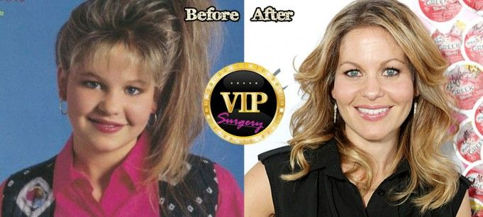 Candace Cameron Plastic Surgery Before And After Photos