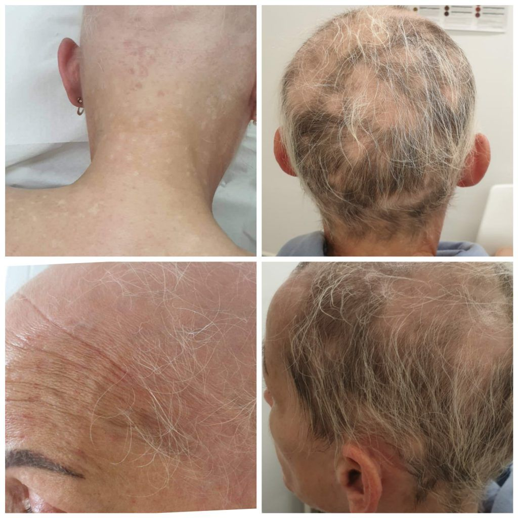 Mesotherapy For Alopecia Beauty And Skin Beauty Salon In Artane Mesotherapy Treat Hair Loss Androgenic Alopecia
