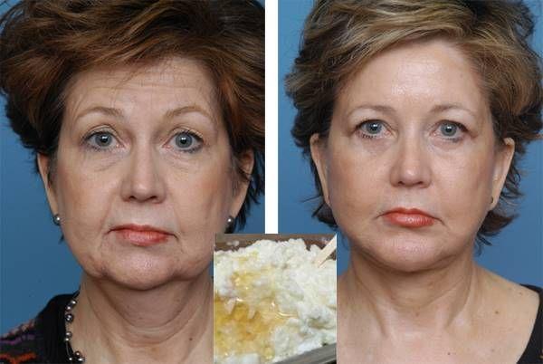 Vidd fel az arcodra heti 1-szer ezt a házi kencét és eltünteti a mély ráncokat, simává varázsolja a bőröd! - Tudasfaja.com