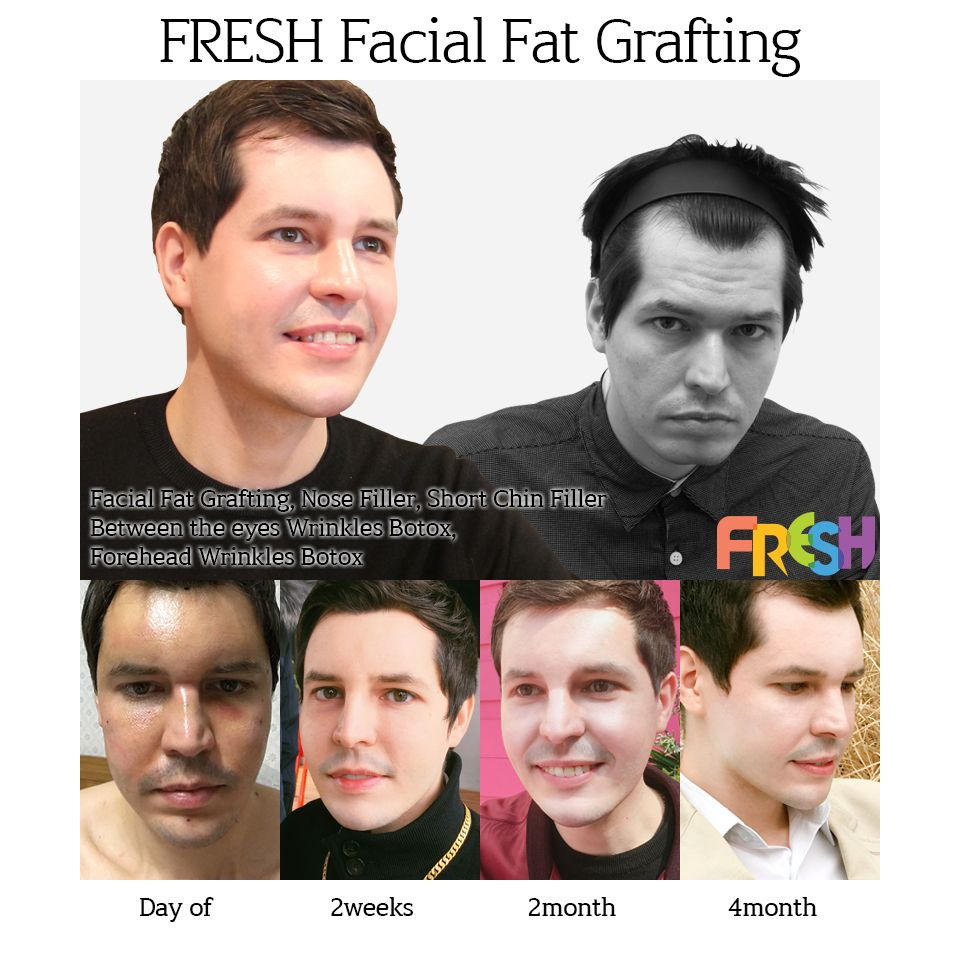 Fresh plastic surgery in south korea korean plastic surgery the best
