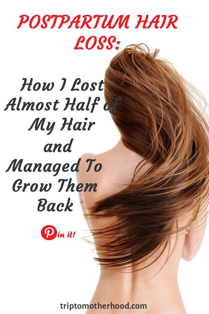 Postpartum Hair Loss: The Truth! (+ BEST Treatments To