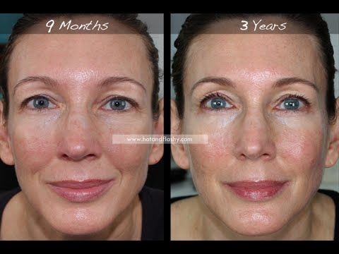 Retin A For Anti Aging 3 Year Results Before Amp After Youtube Anti Aging Skincare Routine Latest Anti Aging Products Tretinoin