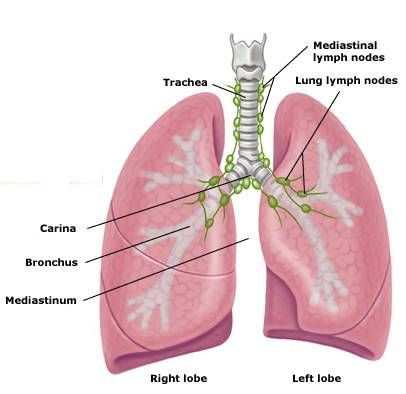 mediastinal lymph nodes....noted on CT/PET for sign of breast cancer ...