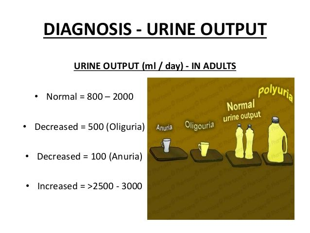 urine output in ml\/day for adults Nursing Pinterest Nurse - sample urine color chart