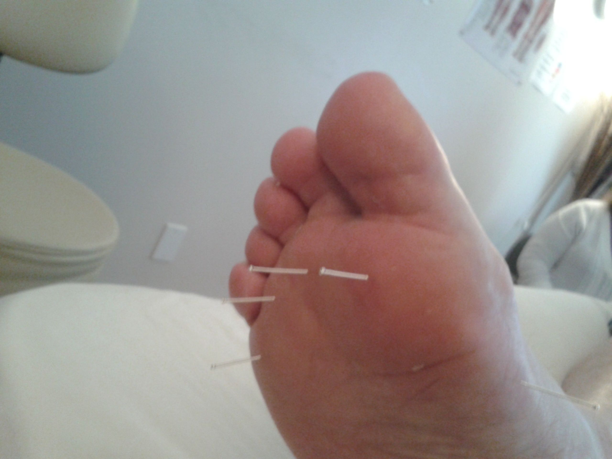 Acupuncture for Neuropathy | Acupuncture, Therapeutic ...