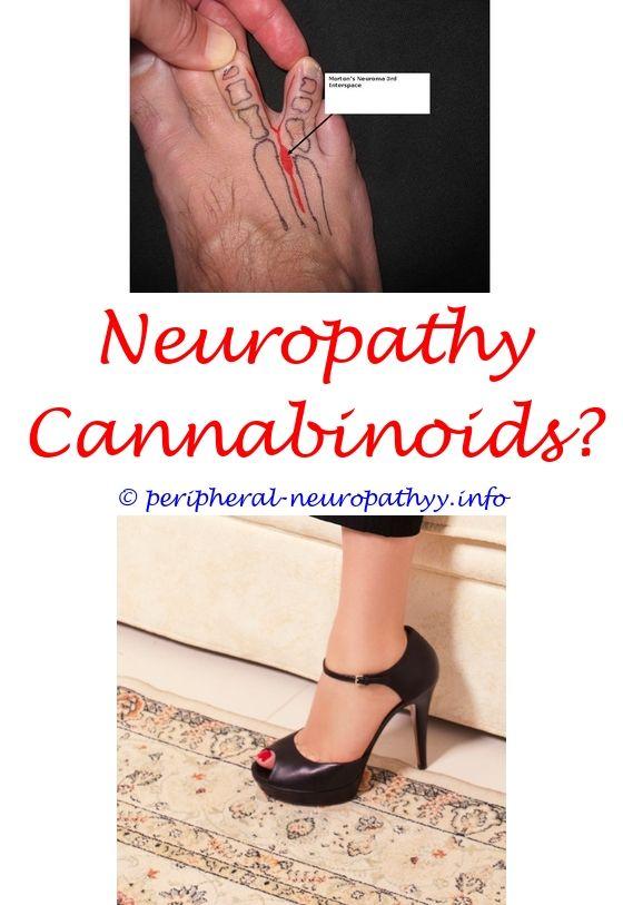 leg joint pain neuropathy icd 10 - cranial neuropathy 8th.median neuropathy  definition sensorineural hearing