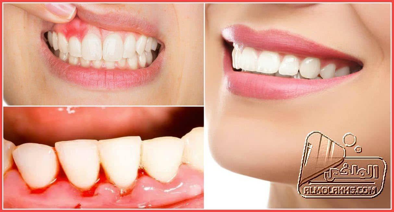 أفضل أدوية لعلاج إلتهاب اللثة والاسنان