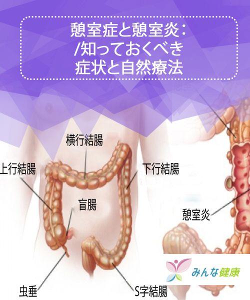 憩室 原因 大腸 炎